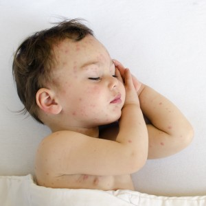 Potrait of a sleeping child with red spots on his skin of chicken pox.